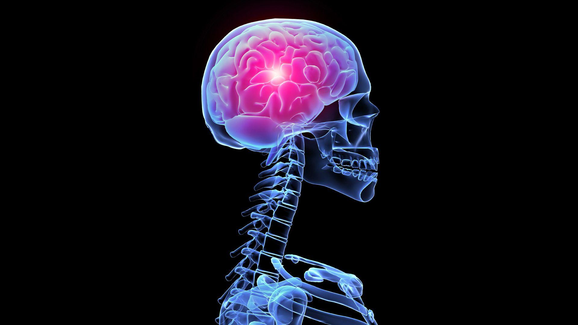 X Rays Of The Brain